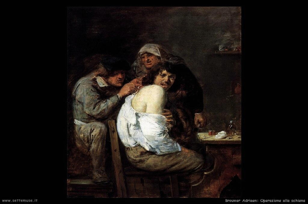 brouwer_adriaen_501_the_back_operation